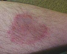 Zeckenstiches mit Borrelioseinfektion am Unterschenkel eines Mannes